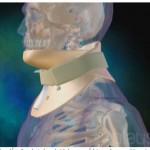 Halskrave og rygkorset