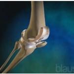 Knæprotese